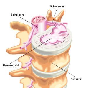 herniated disk 1